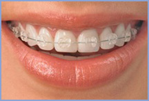 Ceramic Labial Orthodontics