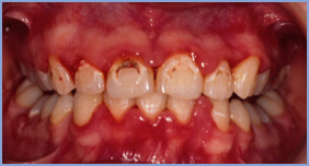 Orthodontic decalcification and gum swelling due to poor tooth brushing