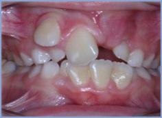 Missing teeth and crooked teeth
